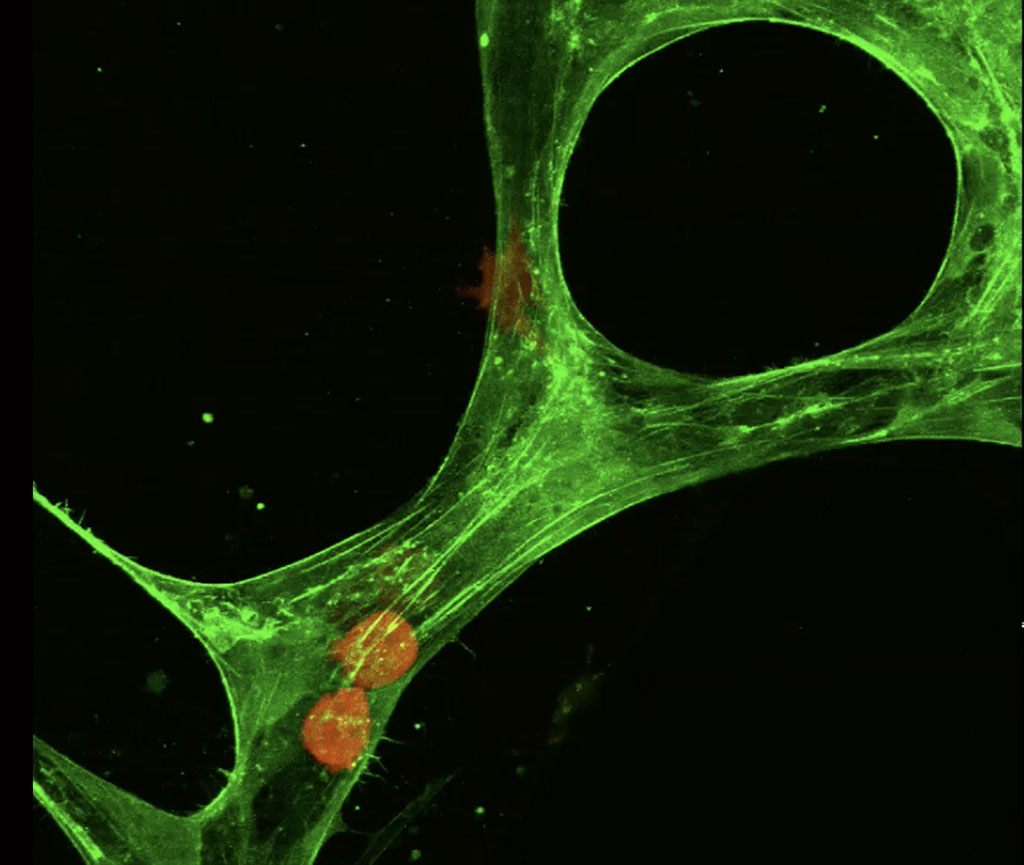 tumor cell leaving blood stream