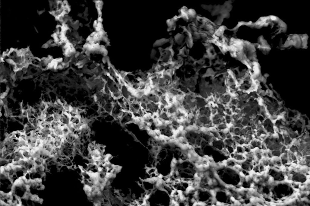 High resolution E-SEM image of the milk protein network in the casein gel (yogurt)