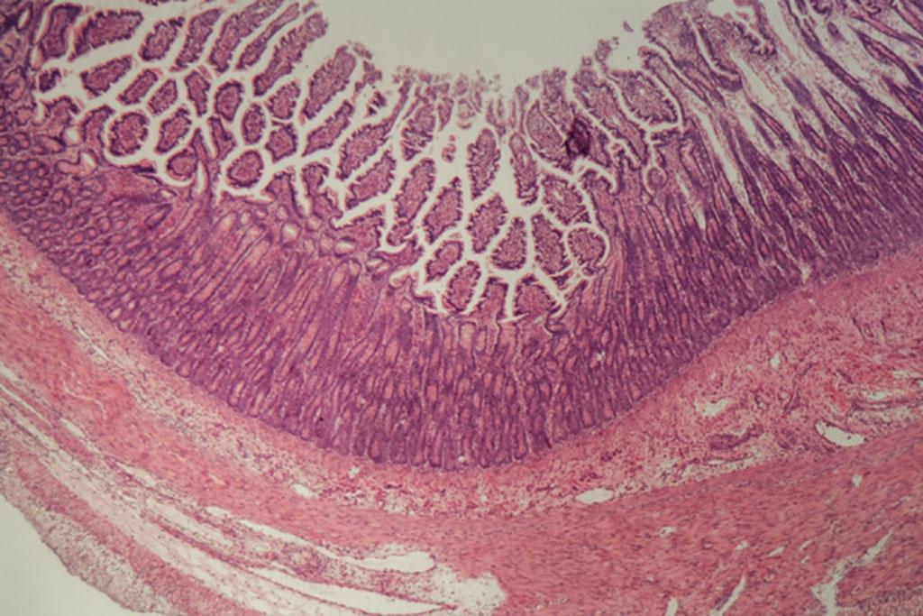 intestinal image