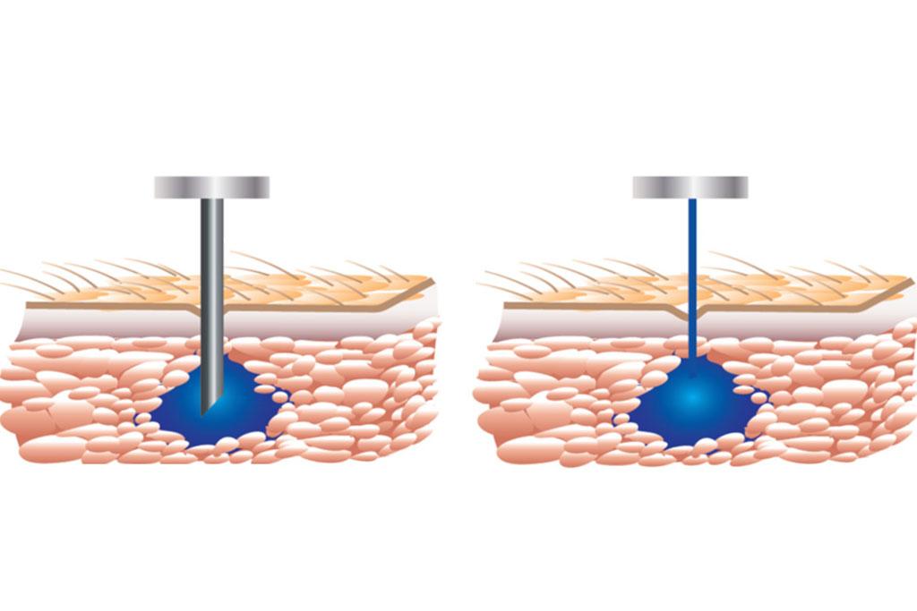 illustration of non-needle device