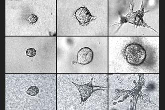 Cell stiffness may indicate whether tumors will invade