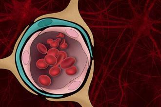 Tissue model reveals role of blood-brain barrier in Alzheimer's